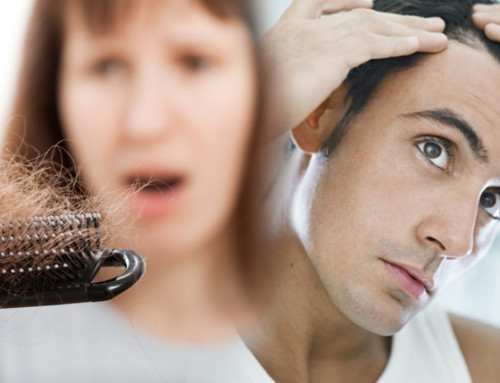 Prevenzione capelli: check-up gratis!